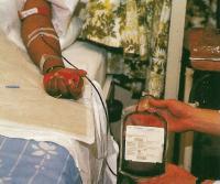 Пациенту проводят аутотрансфузию, используя заранее взятую у него кровь