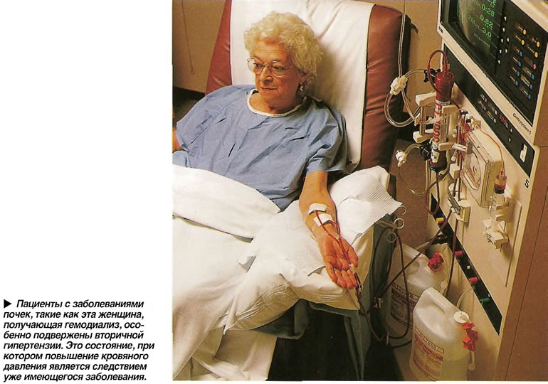 Пациенты с заболеваниями почек, такие как эта женщина, получающая гемодиализ