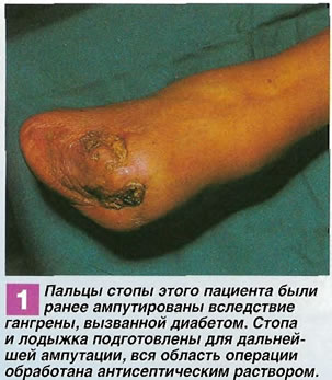 Пальцы стопы этого пациента были ранее ампутированы
