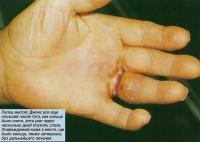 Палец все еще опухший после того, как кольцо было снято