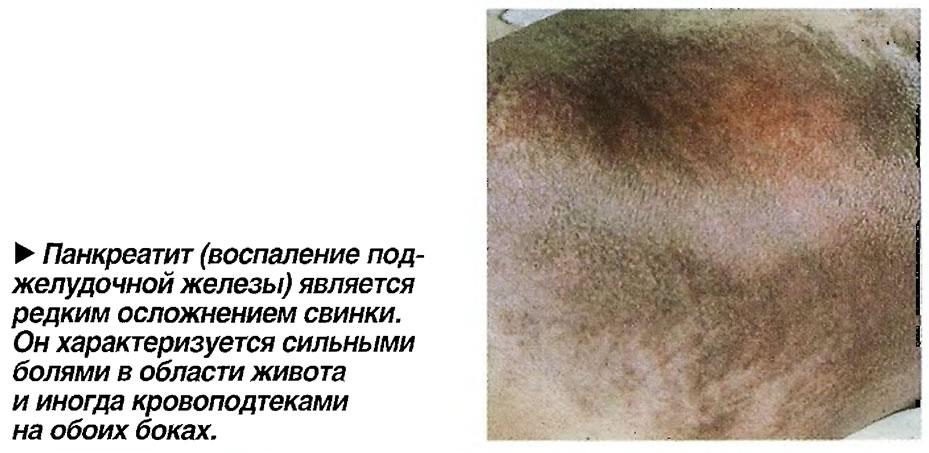 Панкреатит (воспаление поджелудочной железы) является редким осложнением свинки