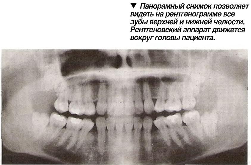 Панорамный снимок зубов и челюсти