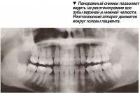 Панорамный снимок позволяет видеть на рентгенограмме все зубы верхней и нижней челюсти