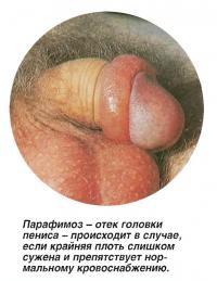 Парафимоз - отек головки пениса