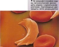 Патологические эритроциты рядом с нормальными клетками