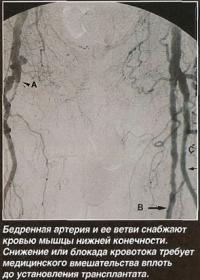 Патология бедренных артерий
