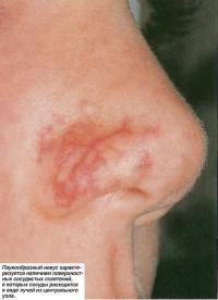 Паукообразный невус характеризуется наличием поверхностных сосудистых сплетений