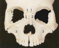 Пазухи черепа