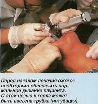 Перед началом лечения ожогов необходимо обеспечить нормальное дыхание пациента