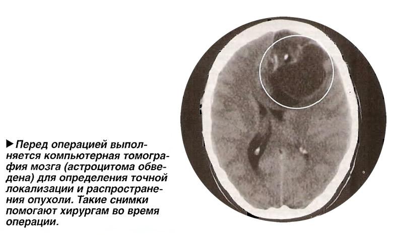 Перед операцией выполняется компьютерная томография мозга