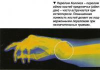 Перелом Коллиса - перелом обеих костей предплечья