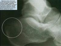Перелом пятки (пяточной кости) происходит вследствие сильного удара