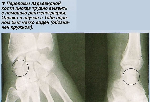 Переломы ладьевидной кости иногда трудно выявить с помощью рентгенографии