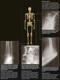 Переломы: плеча, лодыжек, позвонка и локтя