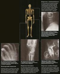Переломы: шеи, кисти, лучевой кости и шейки бедра