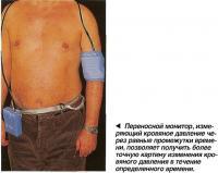 Переносной монитор, измеряющий кровяное давление через равные промежутки времени