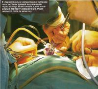 Первоначально лапароскопия проводилась методом прямой визуализации через окуляр