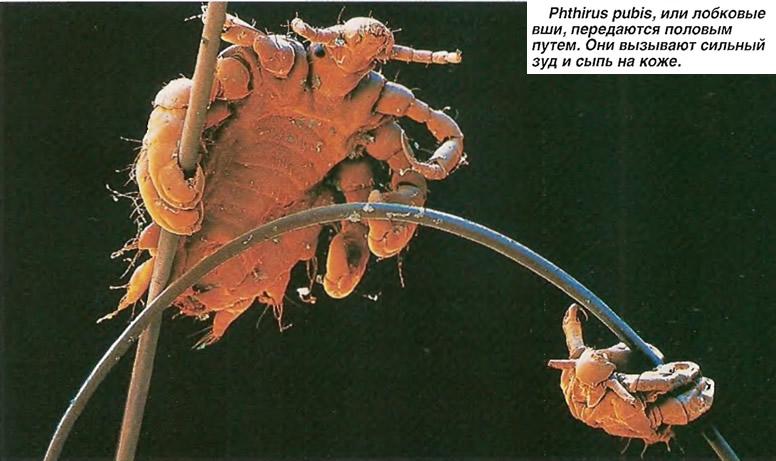 Phthirus pubis, или лобковые вши, передаются половым путем