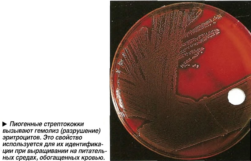 Пиогенные стрептококки вызывают гемолиз (разрушение) эритроцитов.