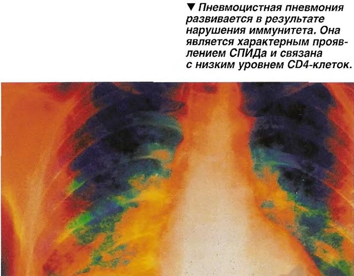 Пневмоцистная пневмония развивается в результате нарушения иммунитета