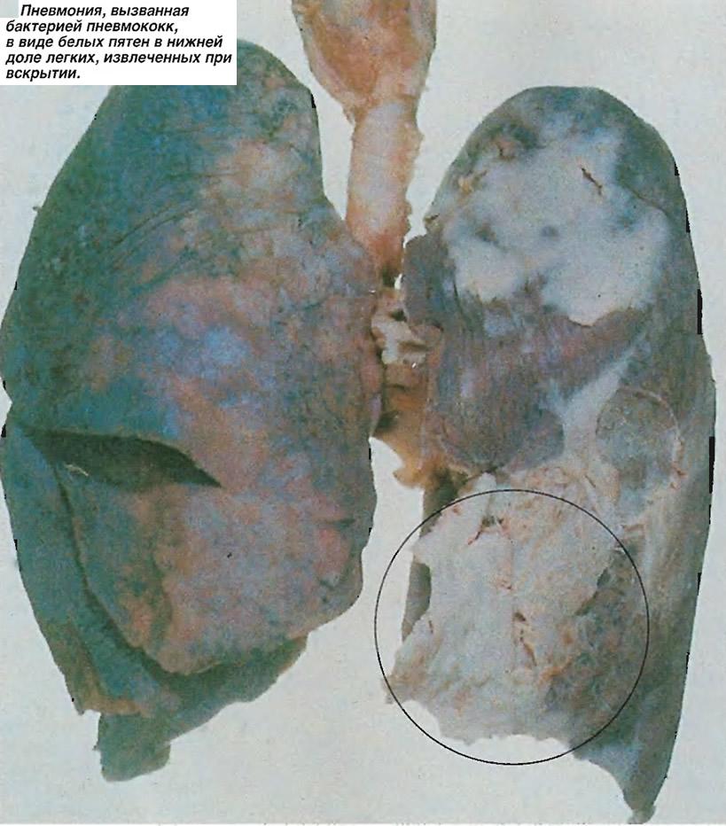 Пневмония, вызванная бактерией пневмококк, в виде белых пятен