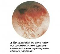 По ссадинам на теле патологоанатом может сделать выводы о характере ранений