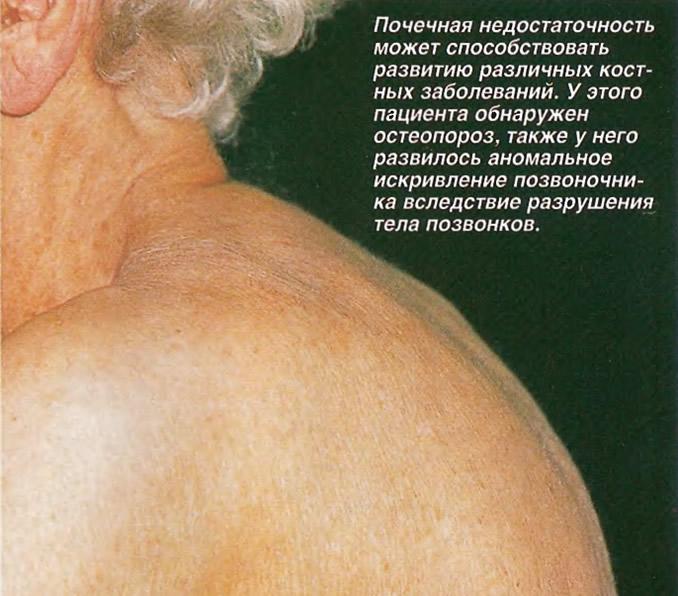 Почечная недостаточность может способствовать развитию различных костных заболеваний