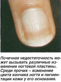 Почечная недостаточность может вызывать различные изменения ногтевой пластины