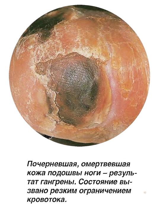 Почерневшая, омертвевшая кожа подошвы ноги - результат гангрены