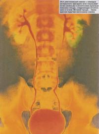 Почки и мочеточники на рентгеновском снимке