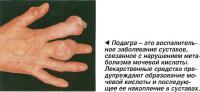 Подагра - это воспалительное заболевание суставов