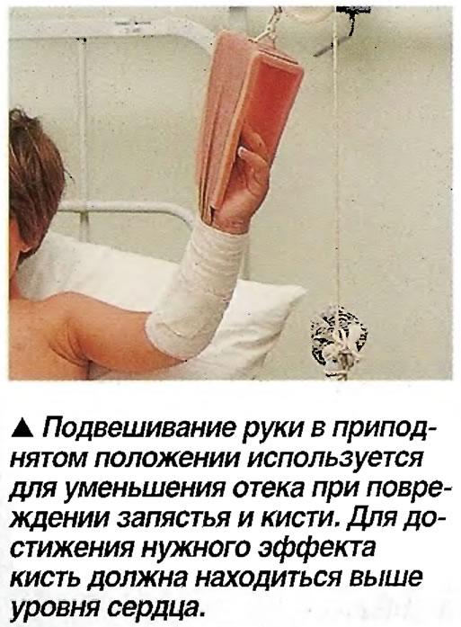 Подвешивание руки в приподнятом положении используется для уменьшения отека при повреждении запястья