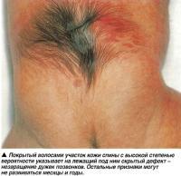 Покрытый волосами участок кожи спины