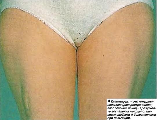 Полимиозит - это генерализованное заболевание мышц