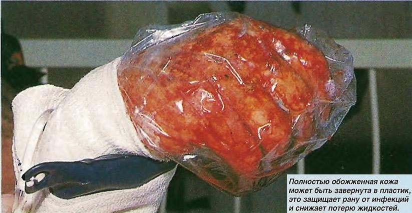 Полностью обожженная кожа может быть завернута в пластик