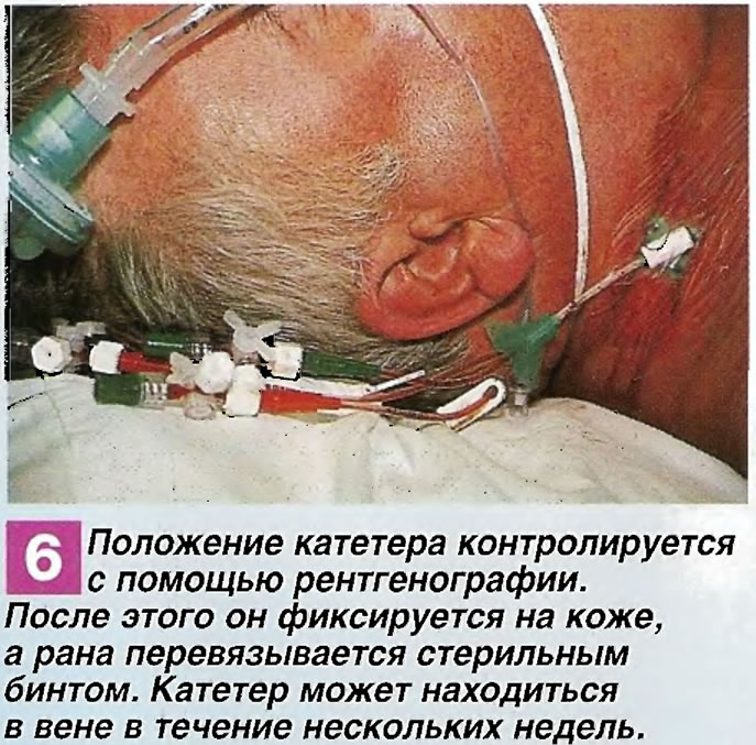 Положение катетера контролируется с помощью рентгенографии