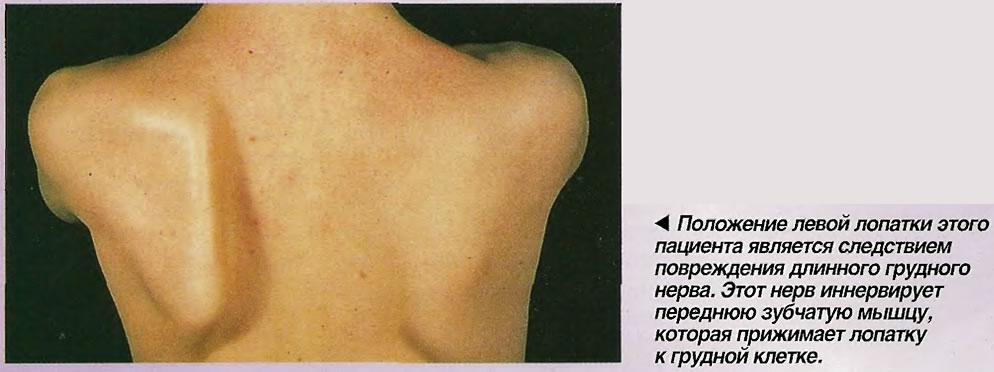 Положение левой лопатки этого пациента является следствием повреждения длинного грудного нерва