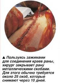 Пользуясь зажимами для соединения краев раны, хирург закрывает рану металлическими скобами