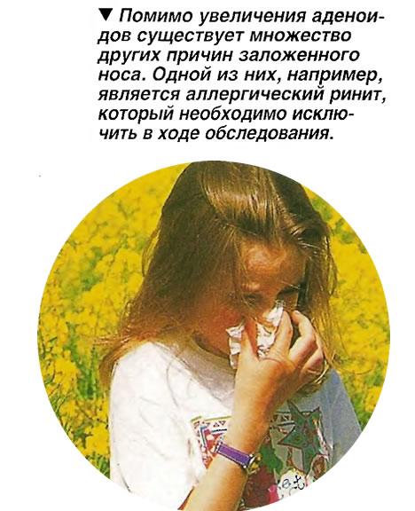 Помимо увеличения аденоидов существует множество других причин заложенного носа