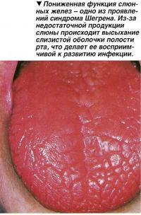 Пониженная функция слюнных желез - одно из проявлений синдрома Шегрена