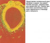 Поперечный срез артерии в норме