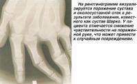 Поражение сустава в результате заболевания сустав Шарко