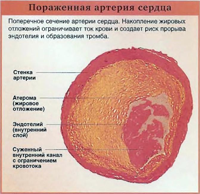 Пораженная артерия сердца