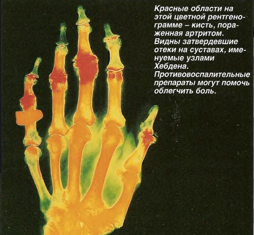 Пораженная артритом кисть