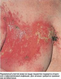Пораженный участок кожи на груди пациентки подвергся вторичной стафилококковой инфекции