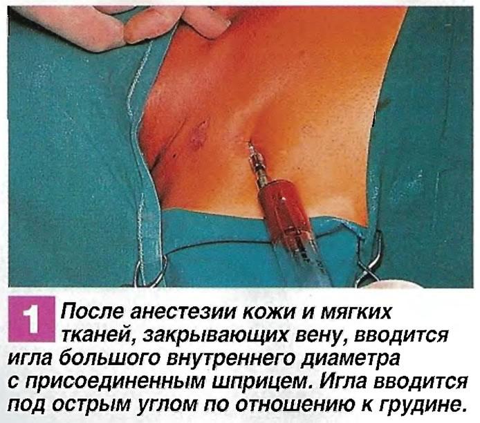 После анестезии кожи и мягких тканей, закрывающих вену, вводится игла большого внутреннего диаметра