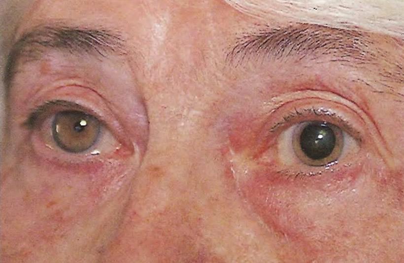 После часа регулярного закапывания капель в глаз левый зрачок полностью расширен