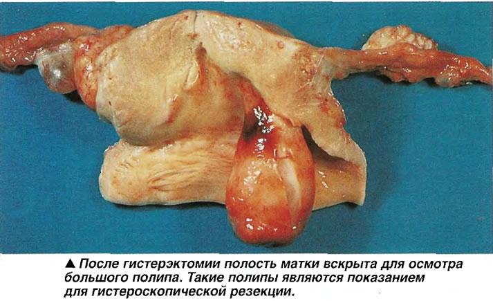 После гистерэктомии полость матки вскрыта для осмотра большого полипа