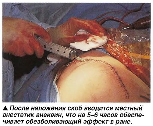 После наложения скоб вводится местный анестетик анекаин