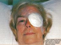После операции глаз накрыт повязкой